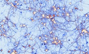Neurons reaching out to learn